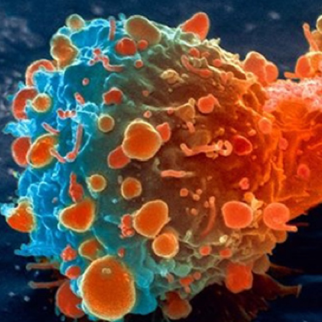 Cure for Cancer in Israel - 360 MAGAZINE | ART + MUSIC +